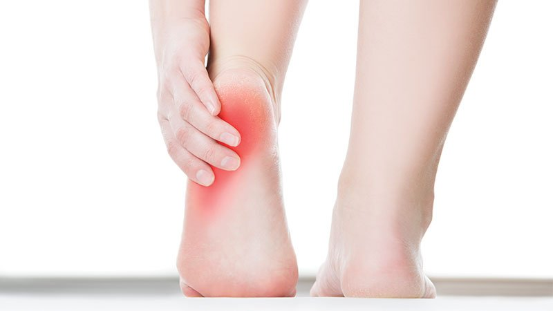 Heel pain: You can't just 'walk it off