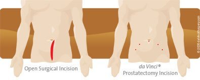 da Vinci Prostatectomy uses a smaller incision than traditional surgery.