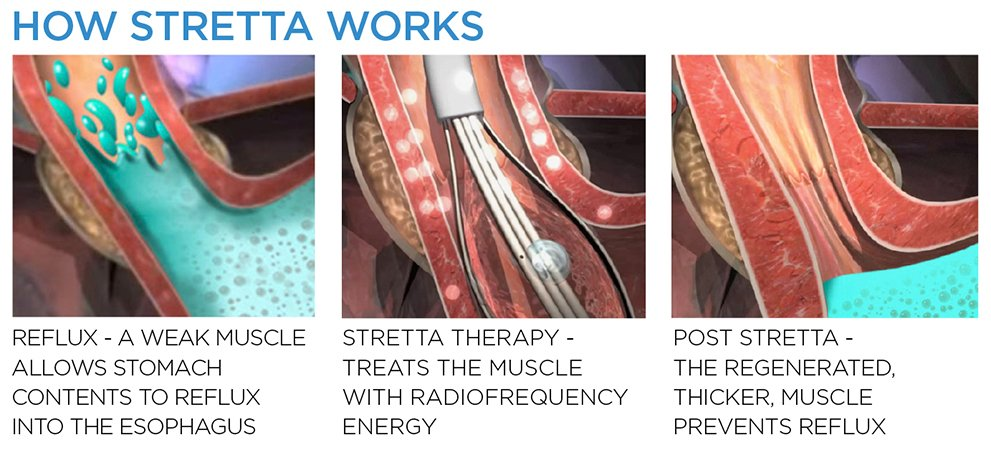 How stretta works