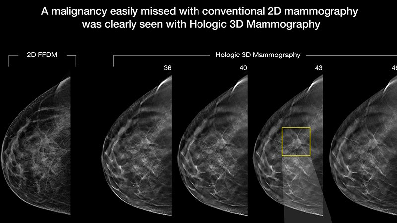 3D mammography now available in Onalaska