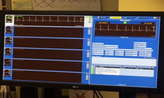 The new Cardiopulmonary Telemetry Monitoring System